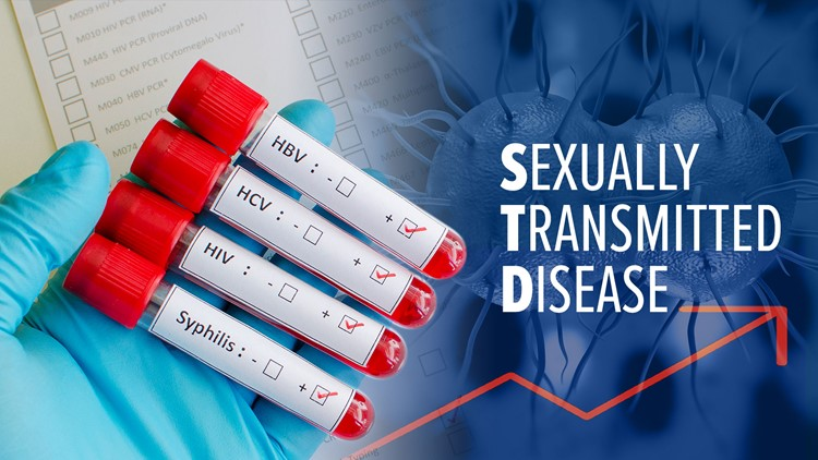 Concerns Everyone Has With Sexually Transmitted Disease Examination